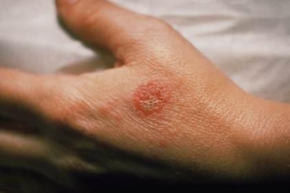 170328-eczema-mn-1350_37adbd93402e75a494559a2680219a71.nbcnews-fp-1200-800