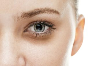articles_how_to_get_rid_of_dark_under_eye_circles_and_bags-800x477